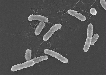 大腸菌 腸管 出血 性