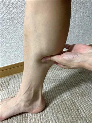 マッサージ あざ 足 足ツボサロンで足裏があざだらけになりました